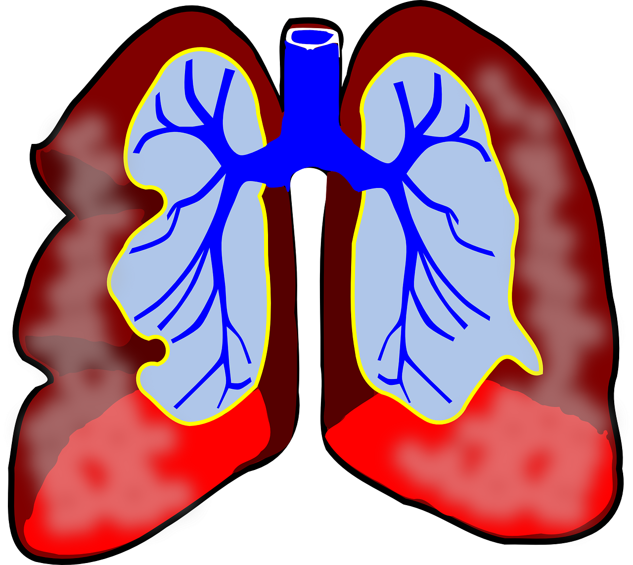 Graphical image of lungs